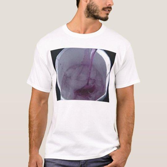Lean2 T-Shirt