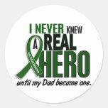 Liver Cancer NEVER KNEW A HERO 2 Dad Stickers