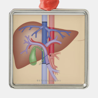 Liver Transplant Procedure Christmas Ornament