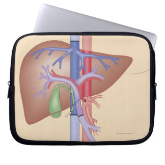Liver Transplant Procedure Laptop Sleeve