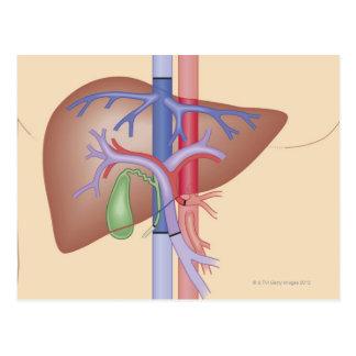 Liver Transplant Procedure Postcard