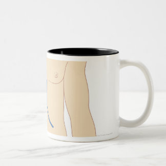 Liver Transplant Two-Tone Coffee Mug