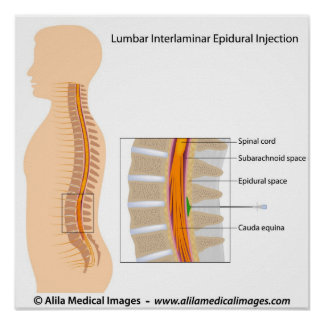 Lumbar epidural injection, labeled diagram. poster