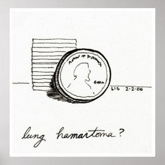 Lung Hamartoma print