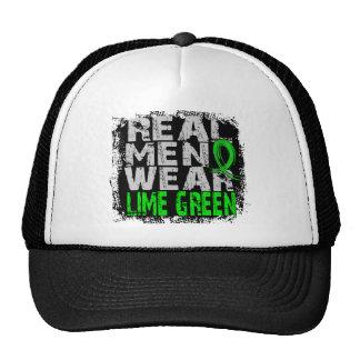 Lyme Disease Real Men Wear Lime Green Cap