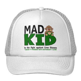 Mad Liver Disease Cap