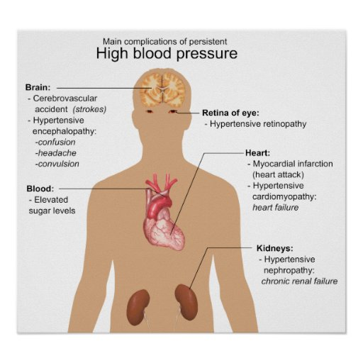 Main Complications Of High Blood Pressure Chart Poster