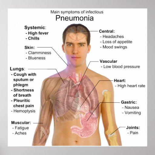 Main Symptoms of Infectious Pneumonia Diagram Poster