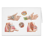 Medical Illustration Showing Carpal Tunnel Card