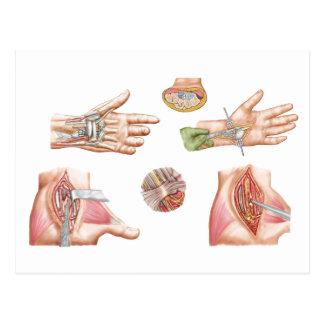 Medical Illustration Showing Carpal Tunnel Postcard