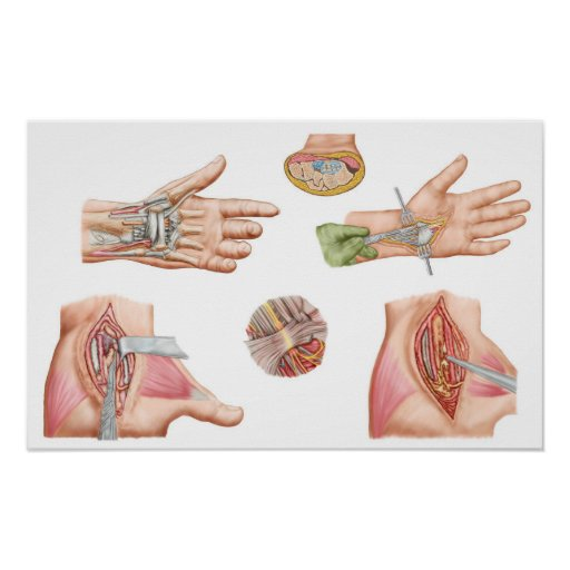 Medical Illustration Showing Carpal Tunnel Poster