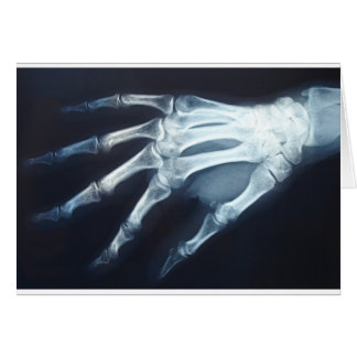 Medical X Ray Imaging Hand Fingers Card