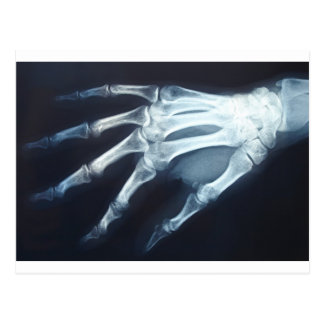 Medical X Ray Imaging Hand Fingers Post Cards