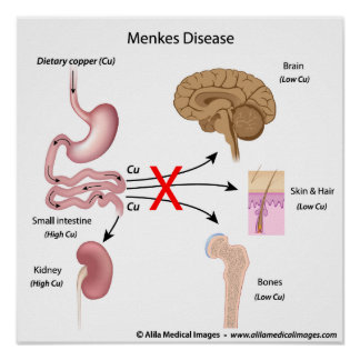 Menkes syndrome, labeled diagram. print