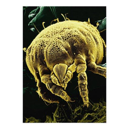 Microscopic Arthropod Acari Mite Lorryia Formosa Invitations