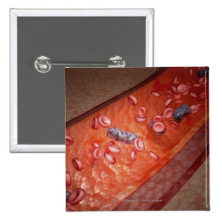 Microscopic rendering of a blood infection 15 cm square badge