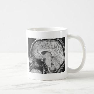 Mid-sagittal MRI Coffee Mug
