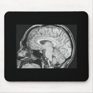 Mid-sagittal MRI Mouse Mat