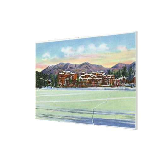 Mirror Lake View of the Lake Placid Club in Gallery Wrapped Canvas