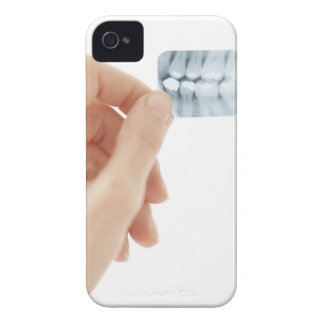 MODEL RELEASED. Dental X-ray. iPhone 4 Case-Mate Cases