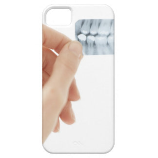 MODEL RELEASED. Dental X-ray. iPhone 5 Covers