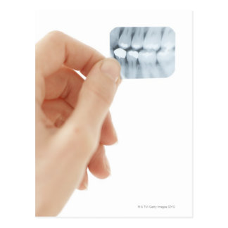 MODEL RELEASED. Dental X-ray. Postcard