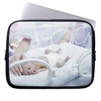 MODEL RELEASED. Nurse and premature baby. Laptop Sleeve