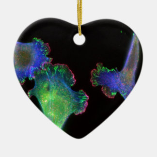 Mouse embryonic fibroblasts christmas ornament
