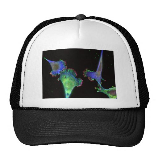 Mouse embryonic fibroblasts hats