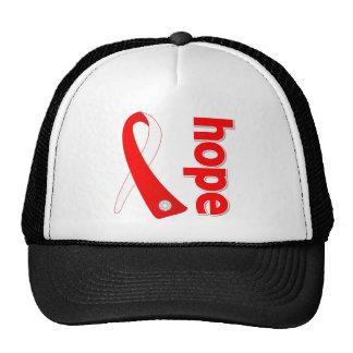 Myelodysplastic Syndromes Hope Ribbon Trucker Hats