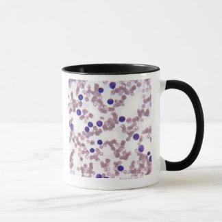 Neoplastic Lymphocyte Cells Mug