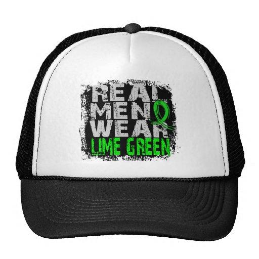Non-Hodgkin's Lymphoma Real Men Wear Lime Green Hats