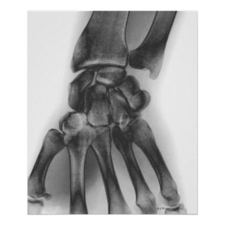 Normal wrist, X-ray Poster
