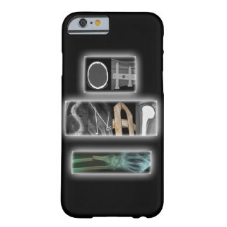 Oh Snap iPhone 6/6s Case