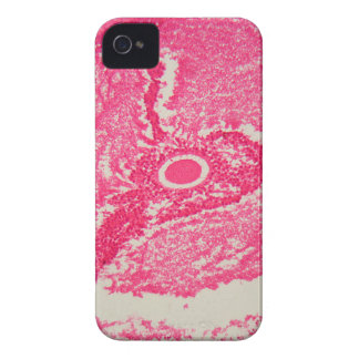 Ovary cells under the microscope. iPhone 4 case