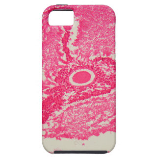 Ovary cells under the microscope. iPhone 5 covers