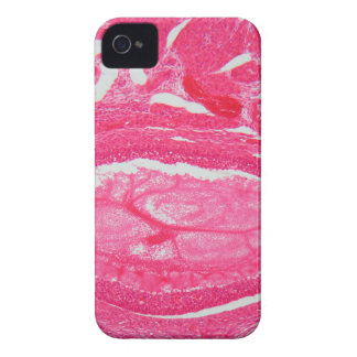 Ovary tissue under the microscope. iPhone 4 Case-Mate cases