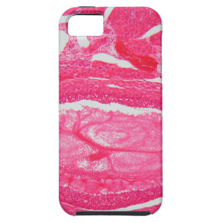 Ovary tissue under the microscope. iPhone 5 case