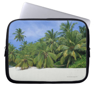 Palm Tree 3 Laptop Sleeve