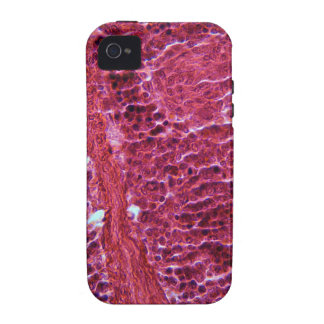 Pancreas Cells under the Microscope Case-Mate iPhone 4 Cover