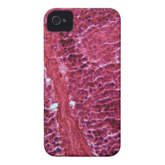 Pancreas Cells under the Microscope iPhone 4 Case-Mate Cases