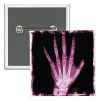 Pink X-ray Skeleton Hand 15 Cm Square Badge