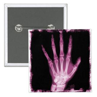 Pink X-ray Skeleton Hand 15 Cm Square Badge