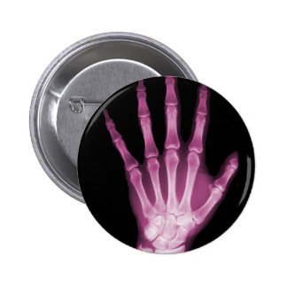 Pink X-ray Skeleton Hand 6 Cm Round Badge