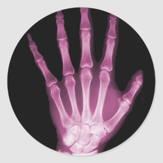 Pink X-ray Skeleton Hand Round Sticker