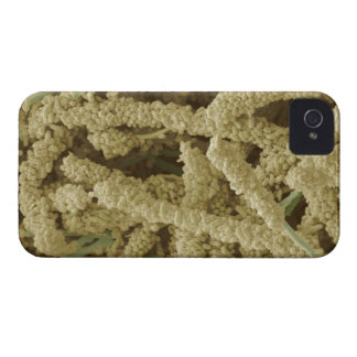 Plaque-forming bacteria, coloured scanning 2 iPhone 4 case