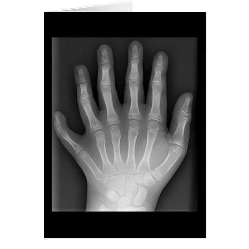 Polydactyly, Six Fingered Hand, X-Ray, rarity! Card