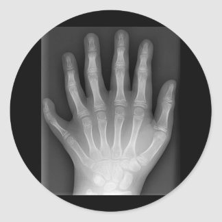 Polydactyly, Six Fingered Hand, X-Ray, rarity! Round Sticker