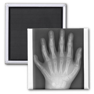 Polydactyly, Six Fingered Hand, X-Ray, rarity! Square Magnet