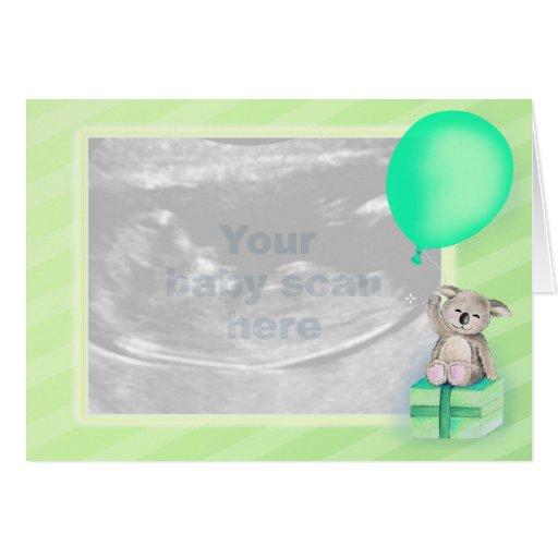 Pregnancy Announcement scan photo green card